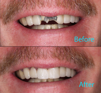 Dental Care Brentwood - Before and after the treatment Patient 26