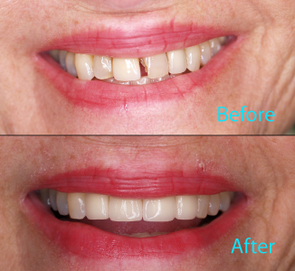 Dental Care Brentwood - Before and after the treatment Patient 27