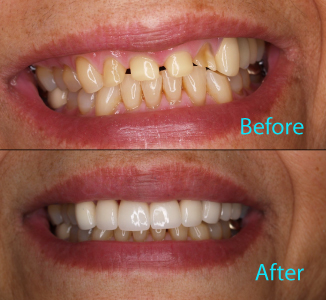 Dental Care Brentwood - Before and after the treatment Patient 28
