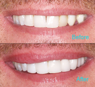 Dental Care Brentwood - Before and after the treatment Patient 3