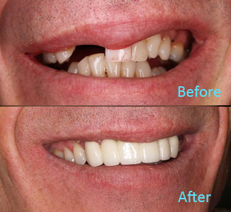 Dental Care Brentwood - Before and after the treatment Patient 30