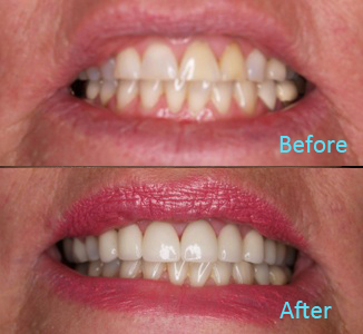 Dental Care Brentwood - Before and after the treatment Patient 31