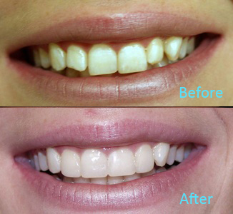 Dental Care Brentwood - Before and after the treatment Patient 32