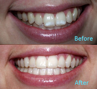 Dental Care Brentwood - Before and after the treatment Patient 33
