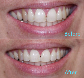 Dental Care Brentwood - Before and after the treatment Patient 34