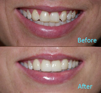 Dental Care Brentwood - Before and after the treatment Patient 35