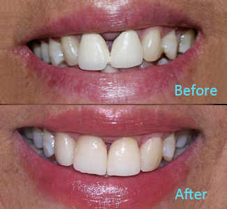 Dental Care Brentwood - Before and after the treatment Patient 36