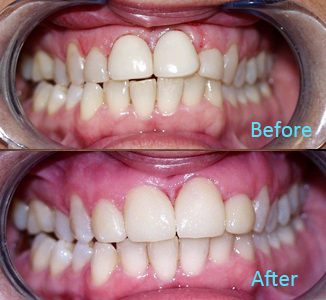 Dental Care Brentwood - Before and after the treatment Patient 37