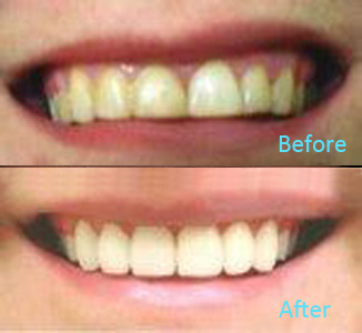 Dental Care Brentwood - Before and after the treatment Patient 38