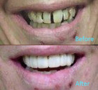 Dental Care Brentwood - Before and after the treatment Patient 39