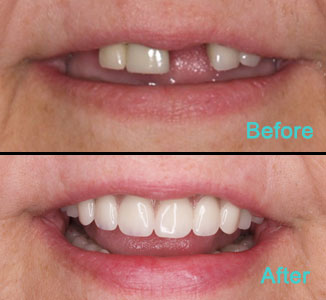 Dental Care Brentwood - Before and after the treatment Patient 4