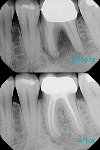 Dental Care Brentwood - Before and after the treatment Patient 40