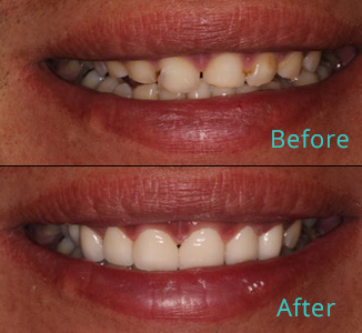 Before and after the treatment Patient 41, Dr. Alkhoury, Brentwood Family Dental