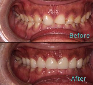 Before and after the treatment Patient 42, Dr. Alkhoury, Brentwood Family Dental