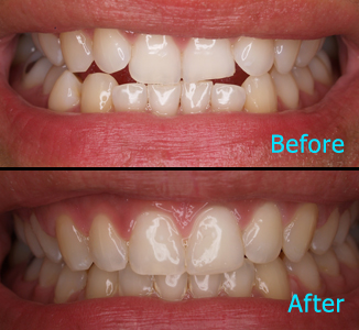Dental Care Brentwood - Before and after the treatment Patient 5