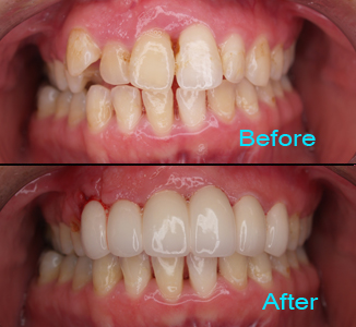 Dental Care Brentwood - Before and after the treatment Patient 6
