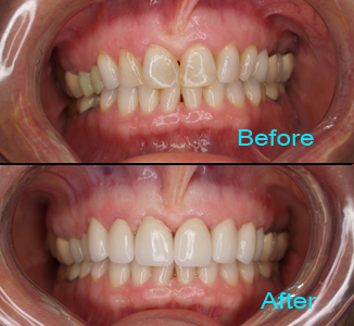 Dental Care Brentwood - Before and after the treatment Patient 7