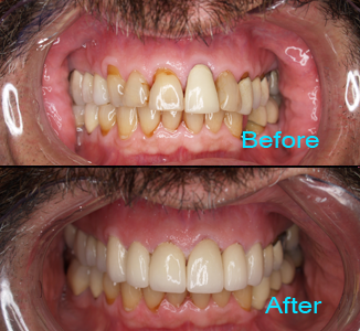 Dental Care Brentwood - Before and after the treatment Patient 8