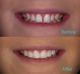 Dental Care Brentwood - Before and after the treatment Patient 9