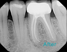 Root Canal Brentwood - Root Canal after the treatment