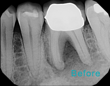 Root Canal Brentwood - Root Canal before the treatment