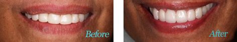 Teeth Whitening Brentwood - Teeth Whitening before and after the treatment