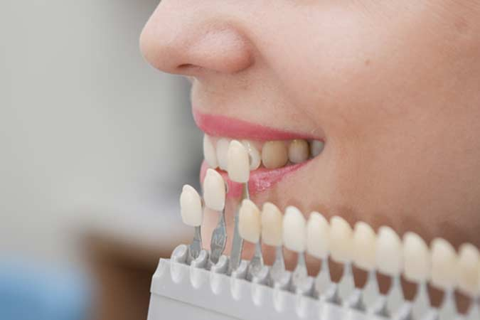 How Are Porcelain Veneers Applied to Teeth in Brentwood area