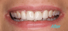 Dentist Brentwood - Cosmetic After Image 2