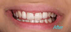 Dentist Brentwood - Cosmetic After image 3