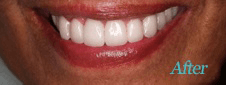 Dentist Brentwood - Teeth Whitening After Image 5