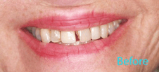 Dentist Brentwood - Dental Venners Before Image 1