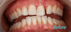 Dentist Brentwood - Cosmetic Before image 2