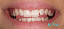 Dentist Brentwood - Cosmetic Before image3