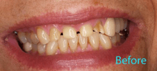 Dentist Brentwood - Dental Crowns  and Bridges Before Image 4
