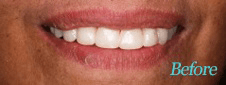 Dentist Brentwood - Teeth Whitening Before Image 5