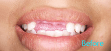 Dentist Brentwood - Dentures and Partials Before Image 6