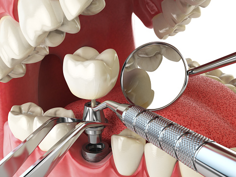 Tooth Implants Procedure at Brentwood Family Dental