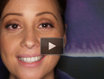 Cosmetic Dentist Brentwood CA - Cosmetic Dentistry Patient testimonials video 1